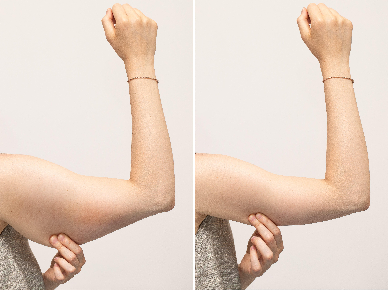 Liposucción de brazo