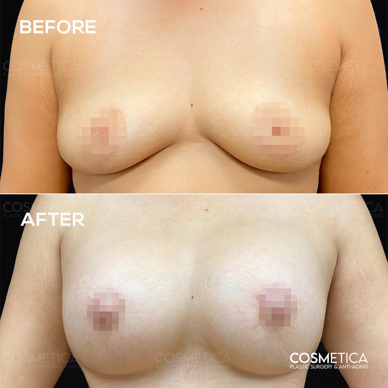 1 Breast Augmentation (principal)