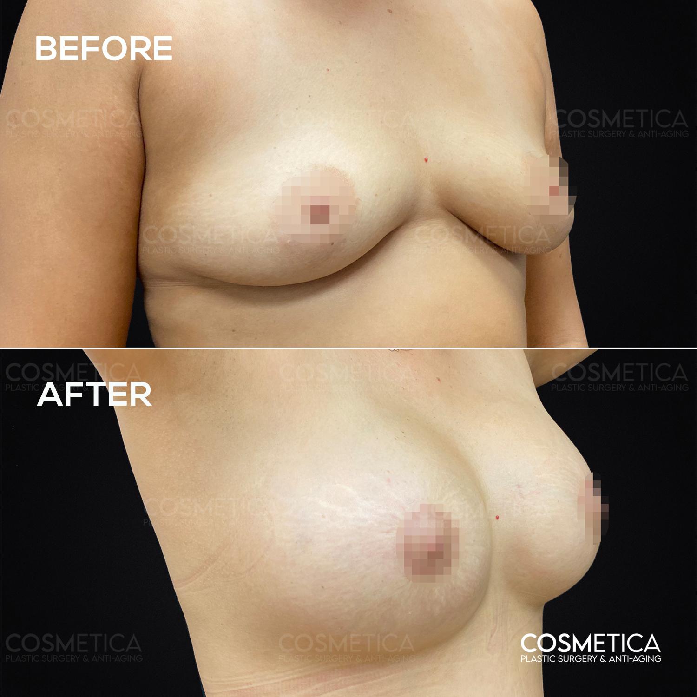 1 Breast Augmentation