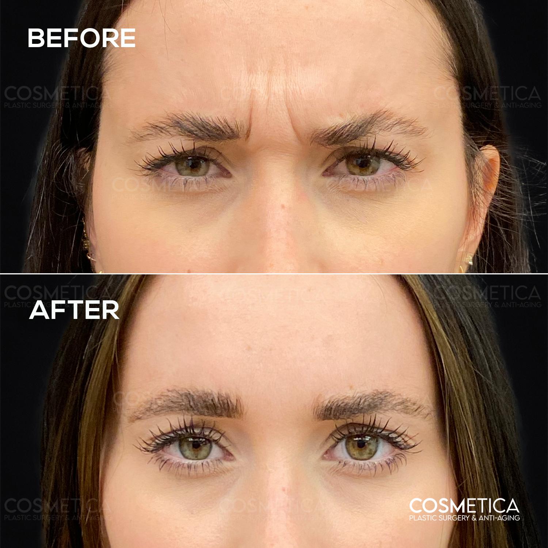 10 botox cosmetica