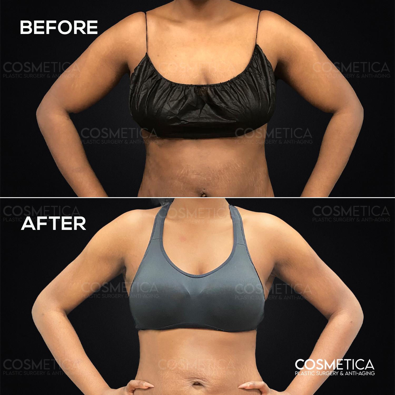 Antes y Después de una liposucción de brazo