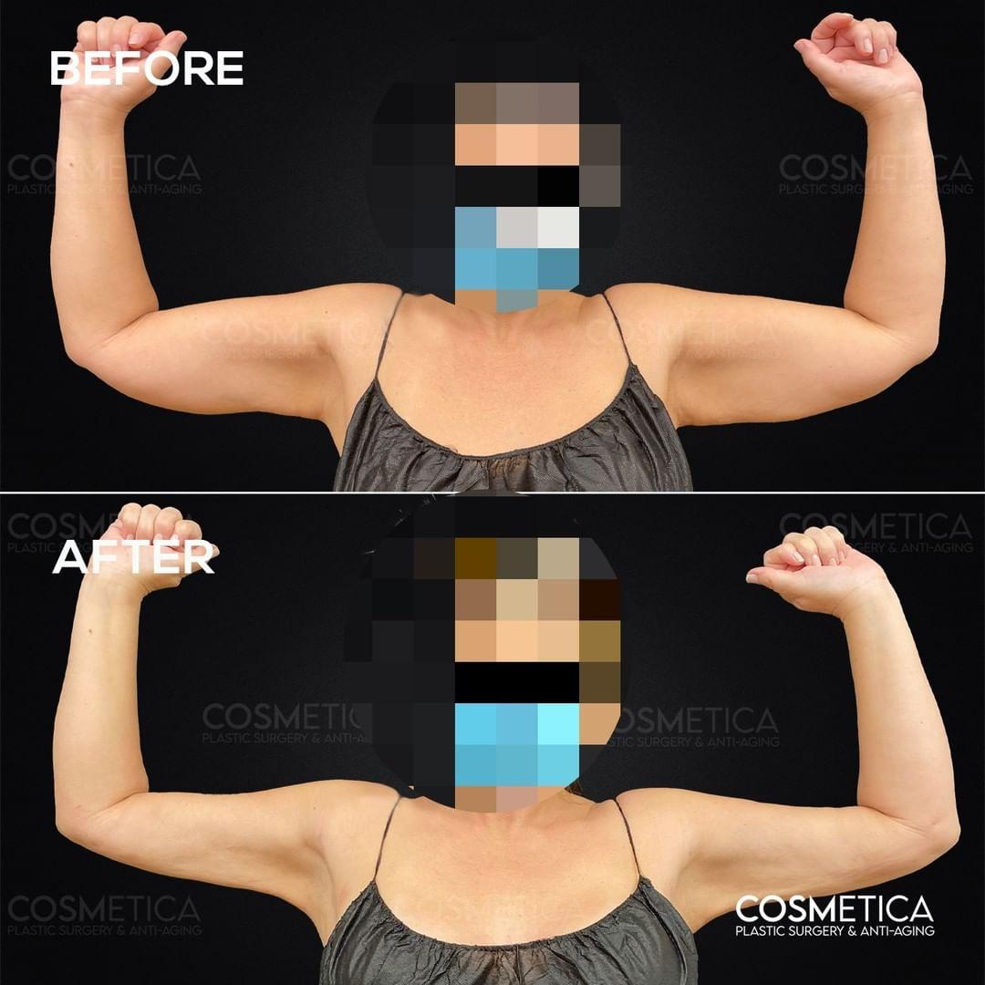Mujer mostrando el antes y después de su liposucción de brazo
