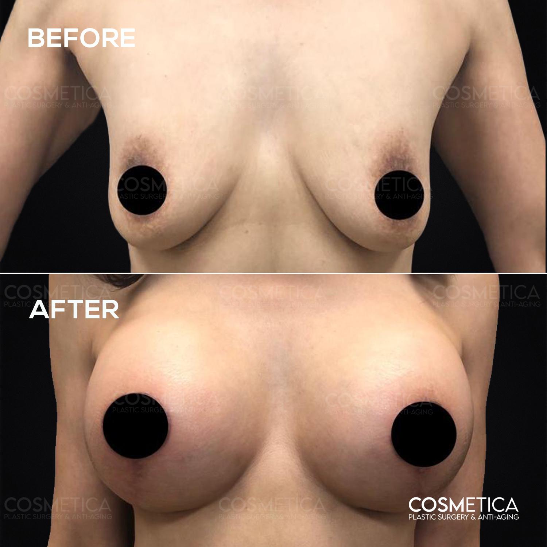 2 Breast lift (principal)