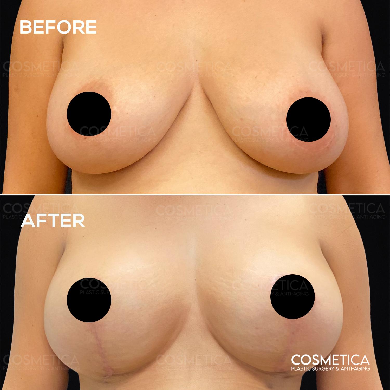 3 Breast lift
