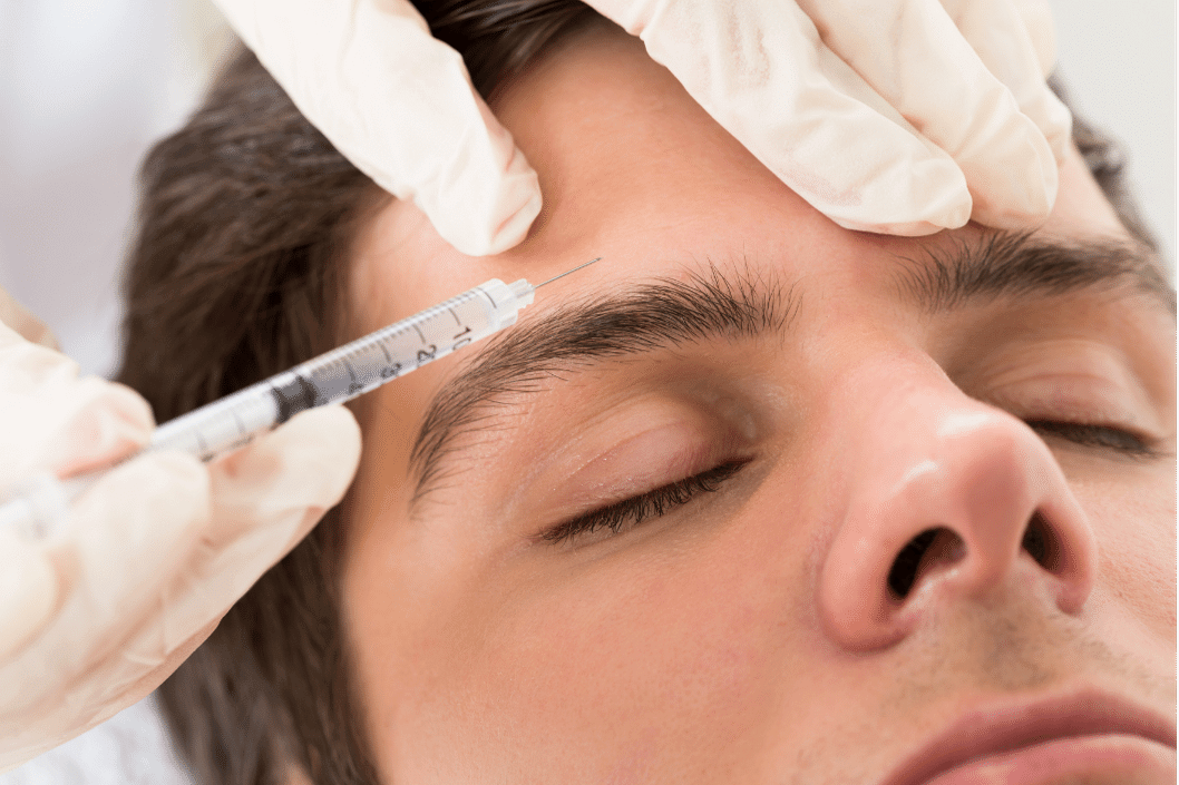 Botox-and-dysport-for-men