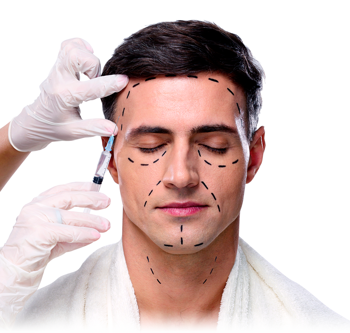 Face and neck lift (1)