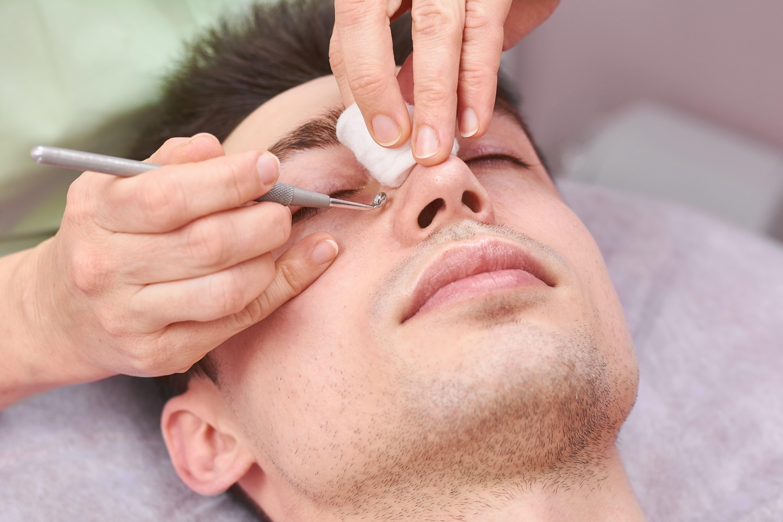 acne-treatment-for-men-cosmetica