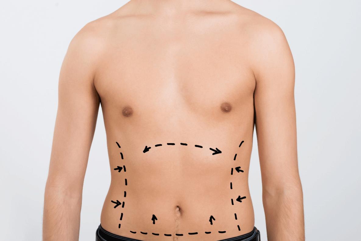 high-definition-liposuction