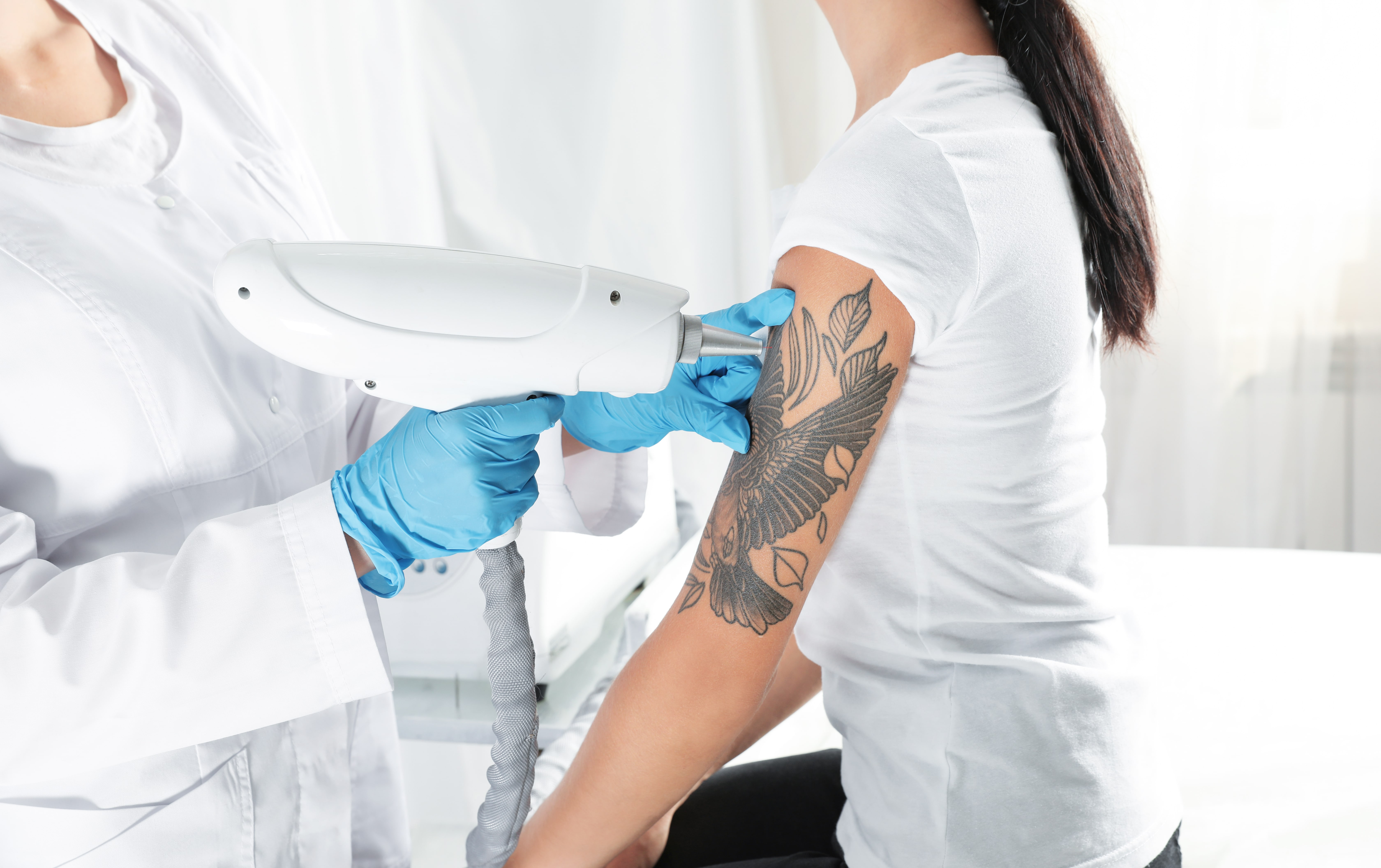 tattoo-removal-laser